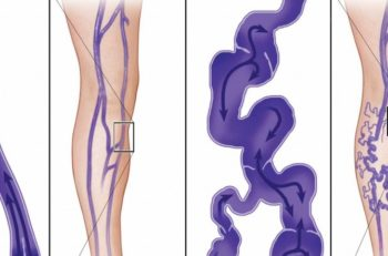 Along with genetics, varicose veins can be formed from poor blood circulation